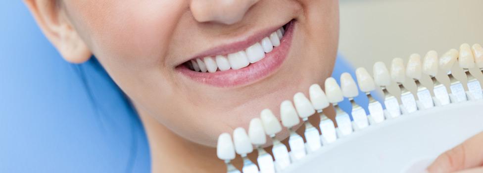 Teeth Whitening Tacoma Dental Centre